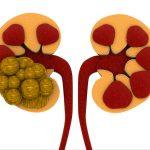 Best Kidney Stone Breaker In India